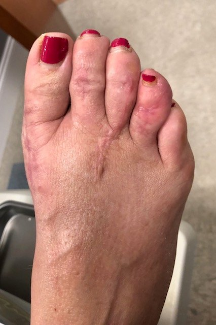 post op hammertoe surgery