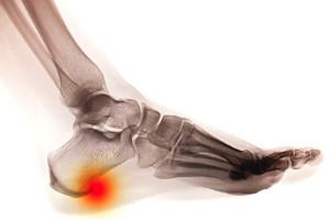How do heel spurs develop